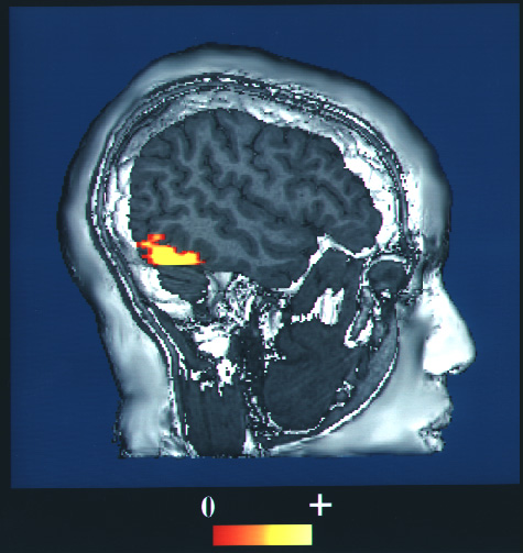 Computer enhanced fMRI san of a person who has been asked to look at faces. The image shows increased blood flow in the part of the visual cortex that recognizes faces